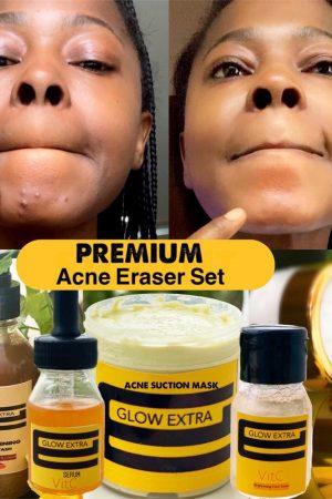 Premium Acne Eraser Set